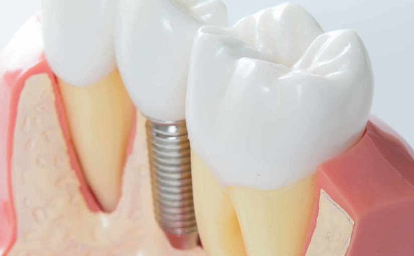 4 Common Mistakes You Must Avoid When Choosing Dental Implants