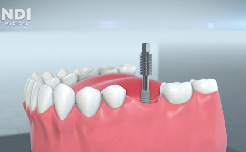 5 dental implants information tidbits that everyone needs to know